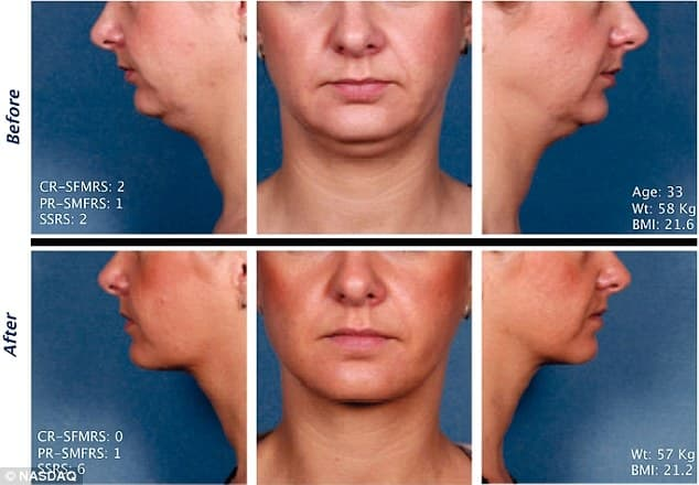 Plastic Surgery For Double Chins Before And After photo - 1
