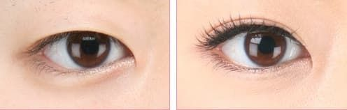 Plastic Surgery For Eyes Before And After photo - 1