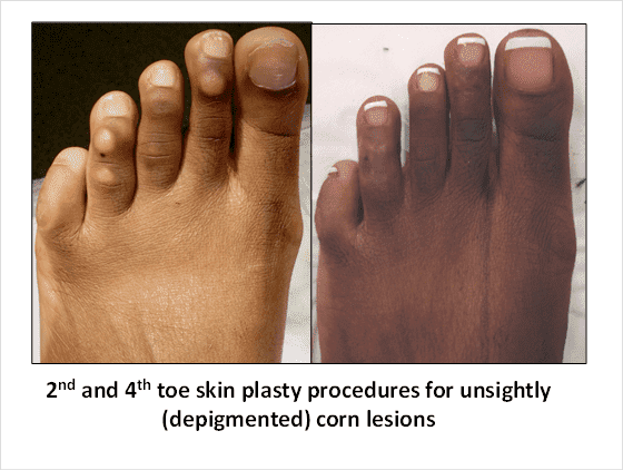 Plastic Surgery For Feet Before And After photo - 1