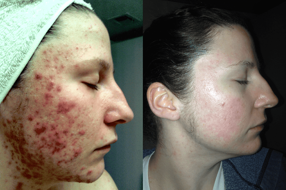 Plastic Surgery For Leprosy Before After photo - 1