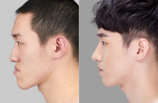 Plastic Surgery For Men Before And After Photos photo - 1