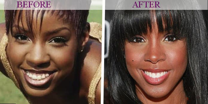 Plastic Surgery For Old People Before And After photo - 1