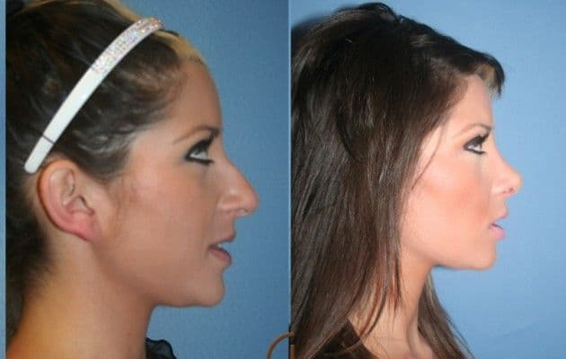 Plastic Surgery For The Face Before And After photo - 1