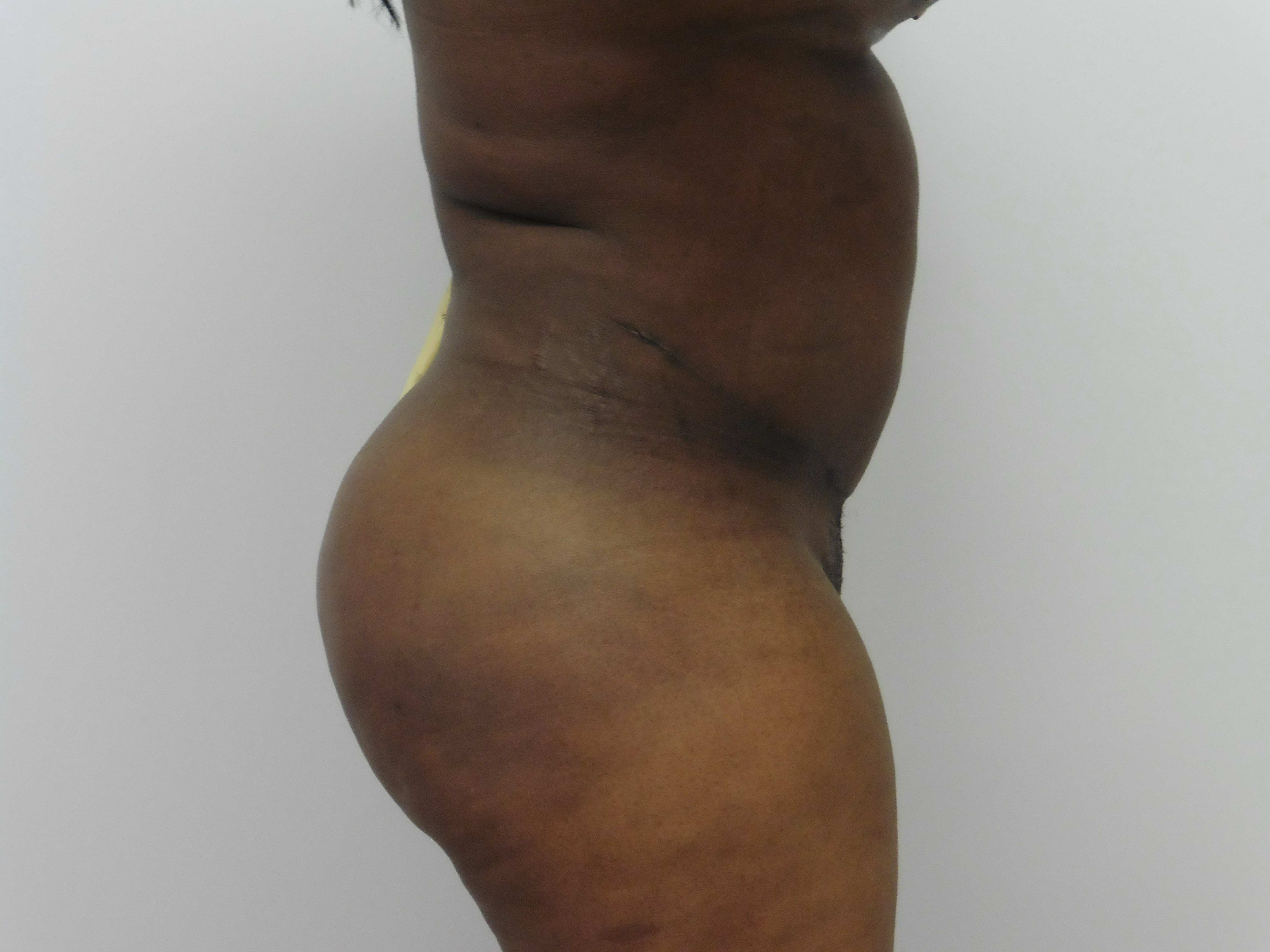 Plastic Surgery For Thighs Before And After photo - 1