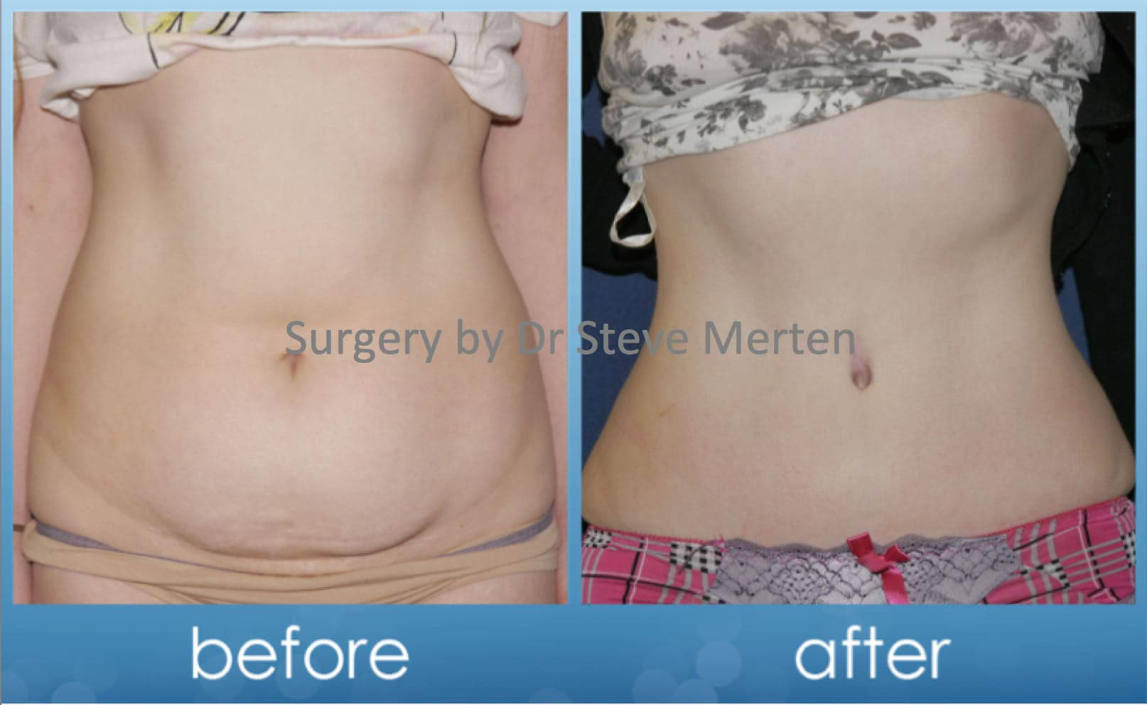 Plastic Surgery Full Body Lift Before After photo - 1