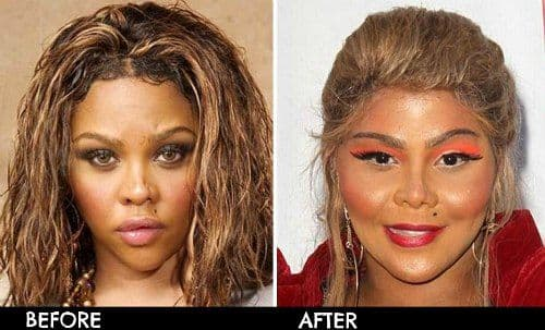 Plastic Surgery Gone Bad Before And After photo - 1