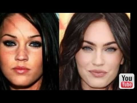 Plastic Surgery Gone Right Before And After photo - 1
