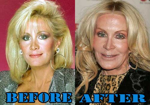 Plastic Surgery Gone Wrong Before After photo - 1