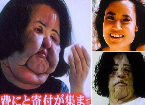 Plastic Surgery Gone Wrong Before And After Pictures photo - 1