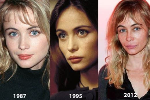 Plastic Surgery Gone Wrong Celebrities Before And After In The 90S photo - 1