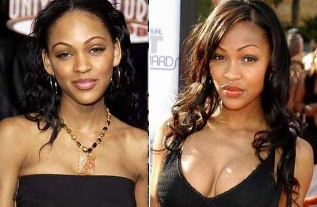 Plastic Surgery Good Before And After photo - 1