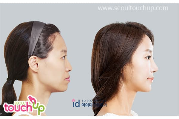 Plastic Surgery In Korea Before And Afte photo - 1