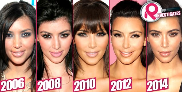Plastic Surgery Kim Kardashian Before After photo - 1