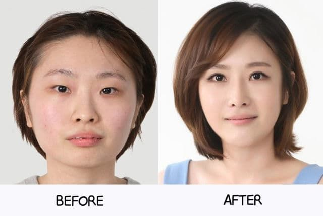 Plastic Surgery Korean Before After photo - 1