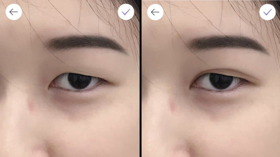 Plastic Surgery Korean Before And After photo - 1