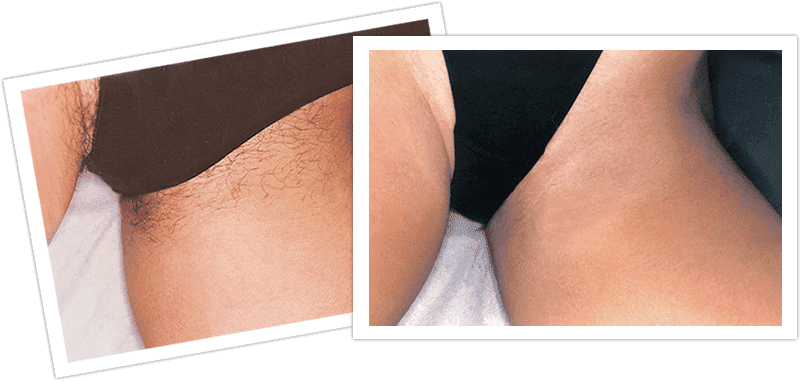 Plastic Surgery Labiaplasty Before After photo - 1
