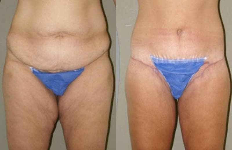Plastic Surgery Leg Lift Before And After photo - 1