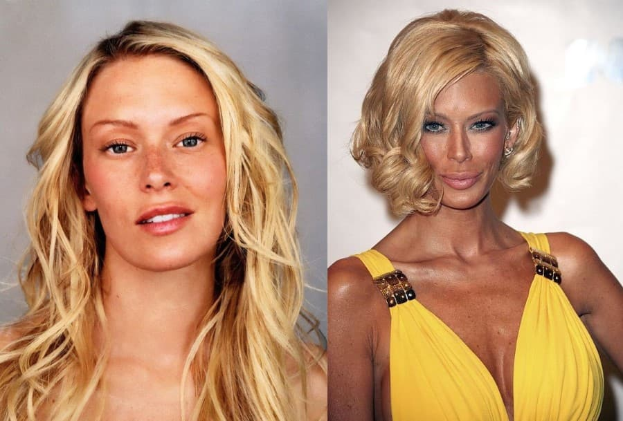 Plastic Surgery Madonna Before And After photo - 1
