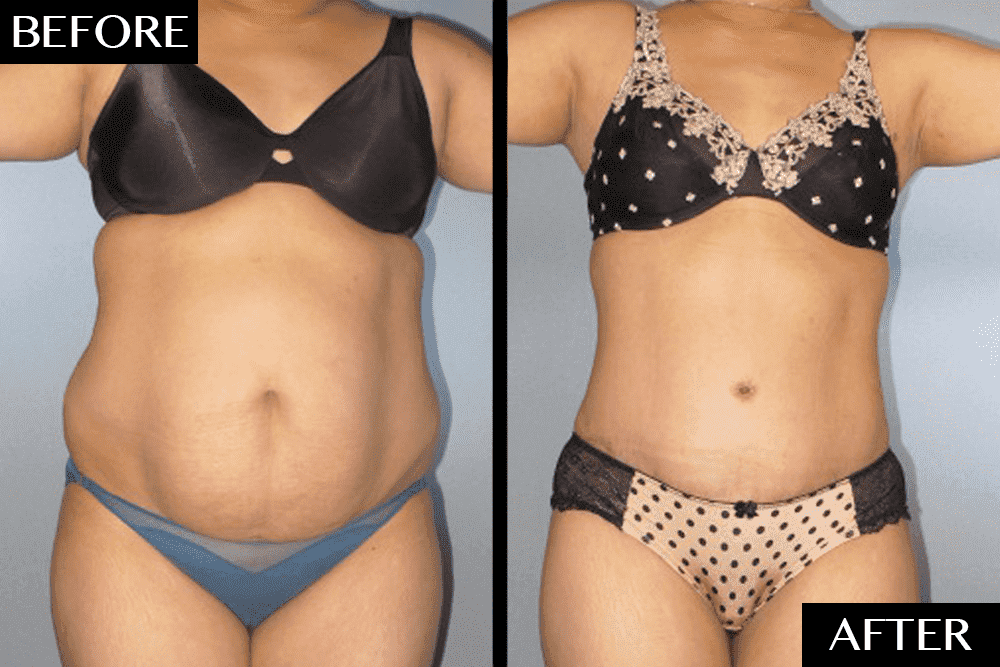 Plastic Surgery Mommy Makeover Before And After photo - 1
