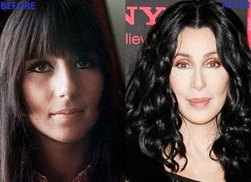 Plastic Surgery Nightmares Before And After photo - 1