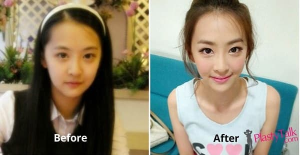 Plastic Surgery On Eyes Before And After photo - 1