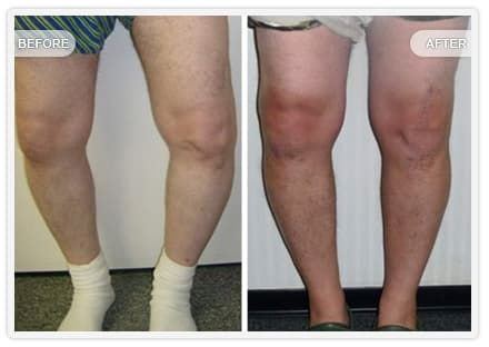 Plastic Surgery On Knees Before And After photo - 1