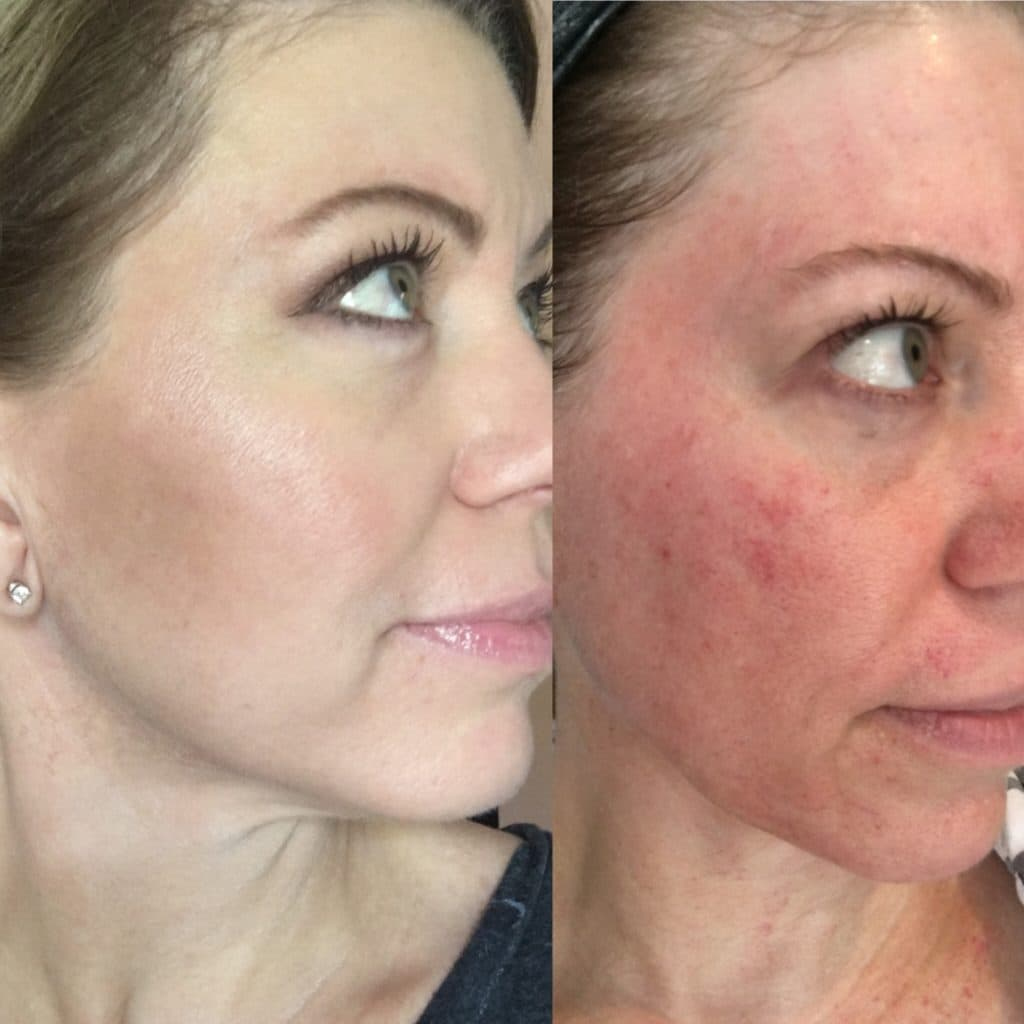 Plastic Surgery On Scars Before And After photo - 1