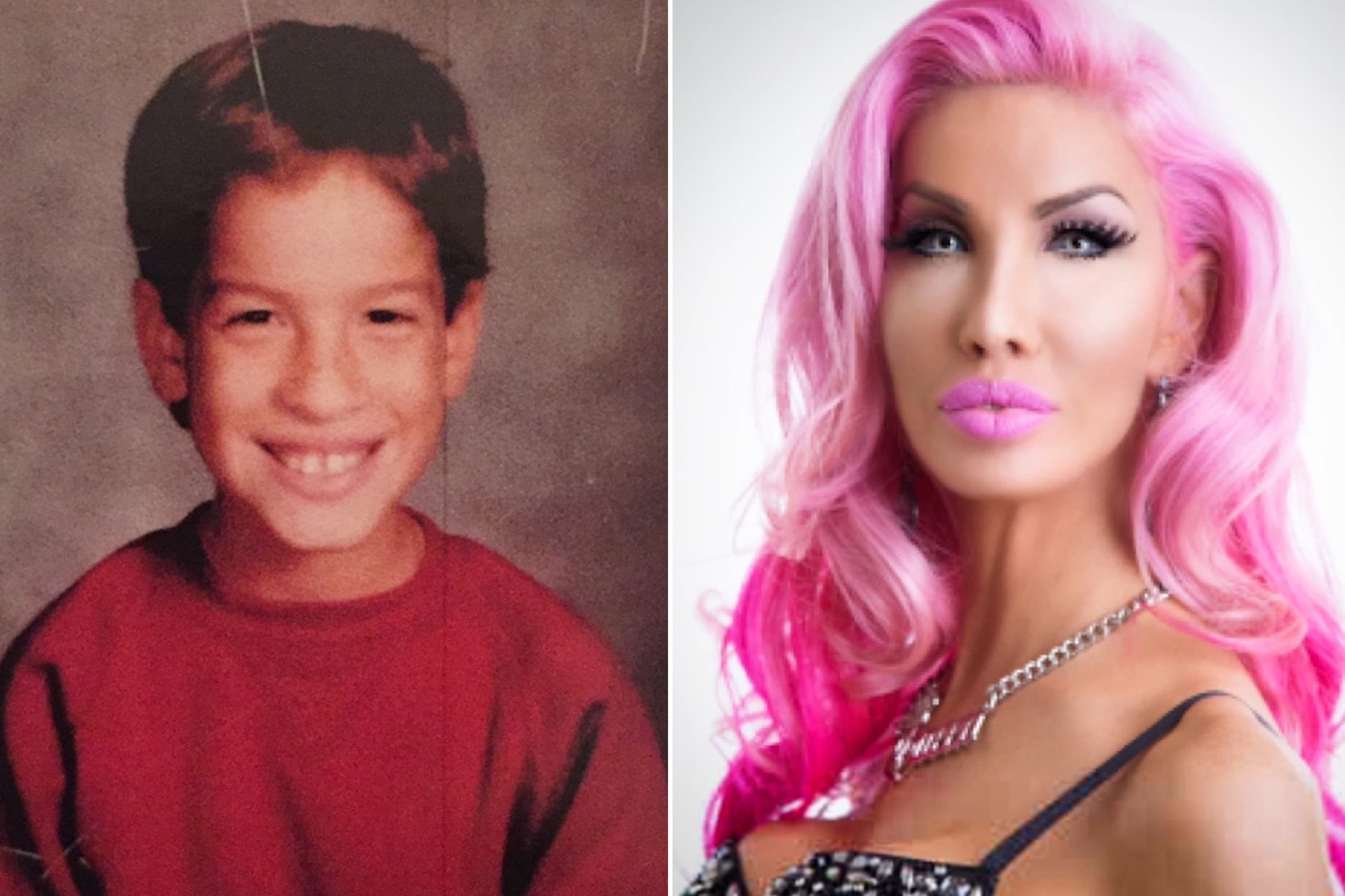 Plastic Surgery On The But Before And After Tube photo - 1