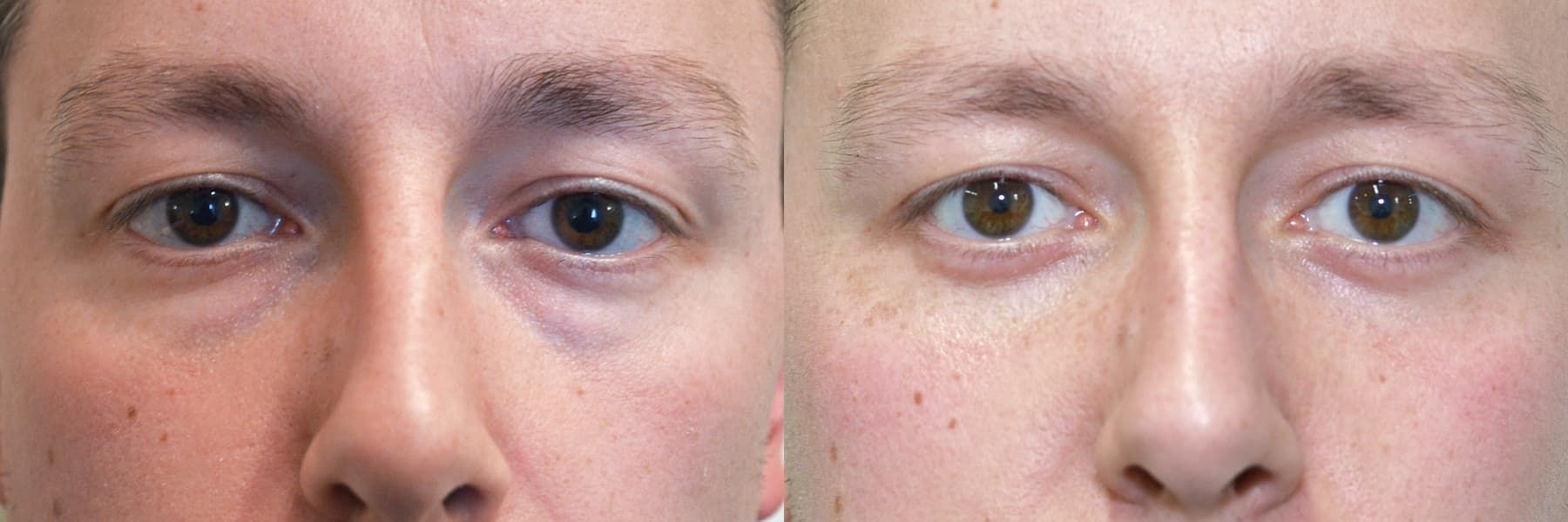 Plastic Surgery Ptosis Before And After photo - 1