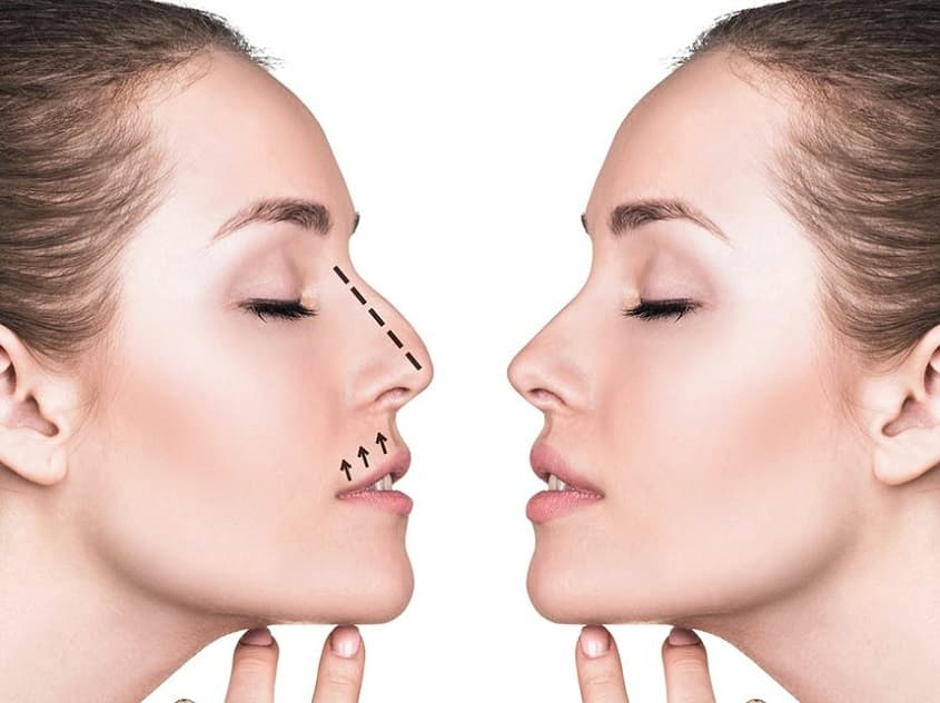 Plastic Surgery Reviews Before After photo - 1
