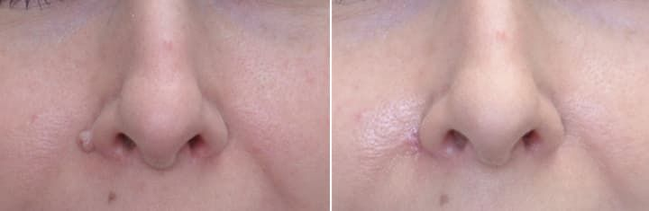 Plastic Surgery Scar Removal Before And After photo - 1
