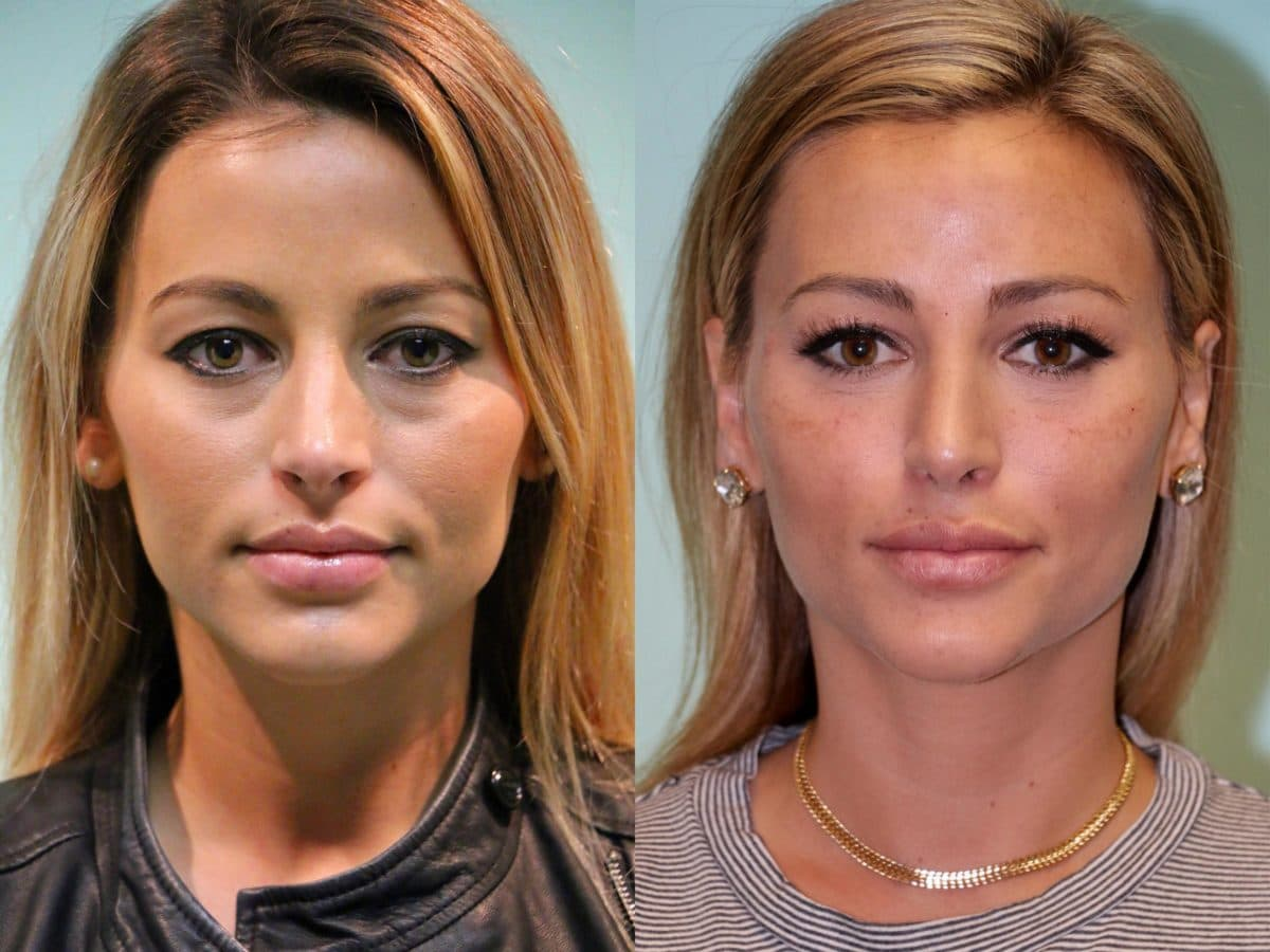 Plastic Surgery Skin Lightening Before And After photo - 1