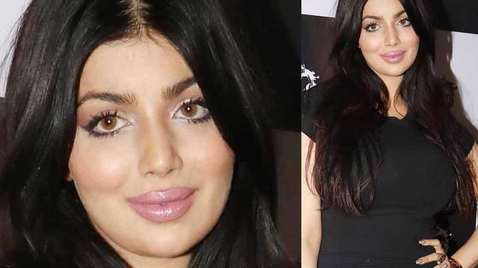 Plastic Surgery Stars Before After photo - 1