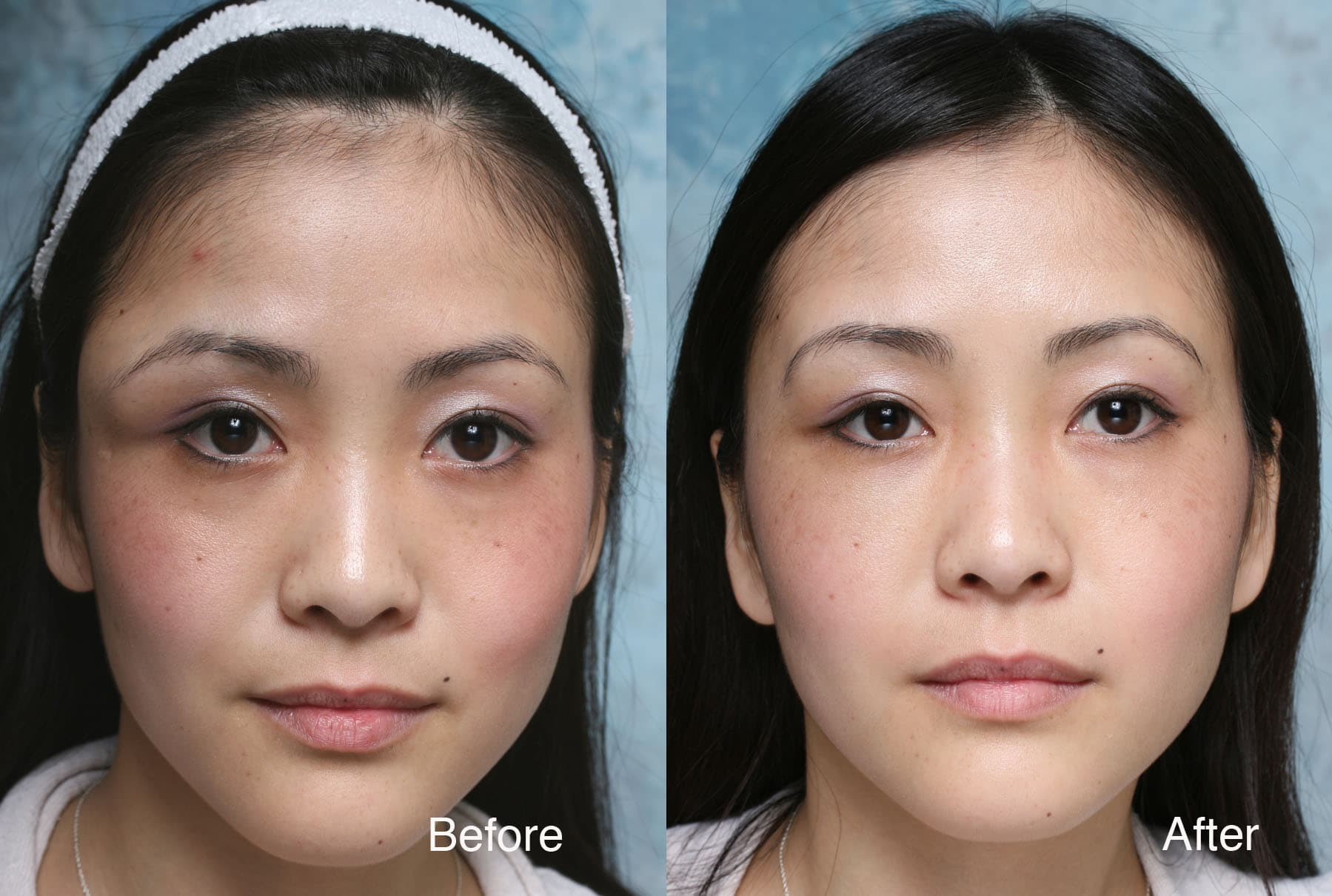 Plastic Surgery To Look Asian Before After photo - 1