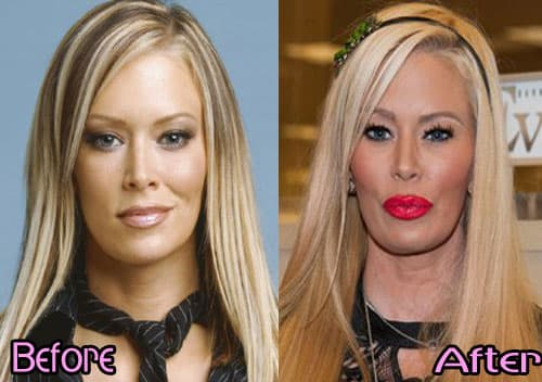 Plastic Surgery To Look Like Barbie Before And After photo - 1