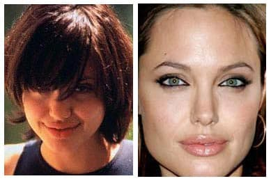 Plastic Surgery Transformations Before After Swan photo - 1