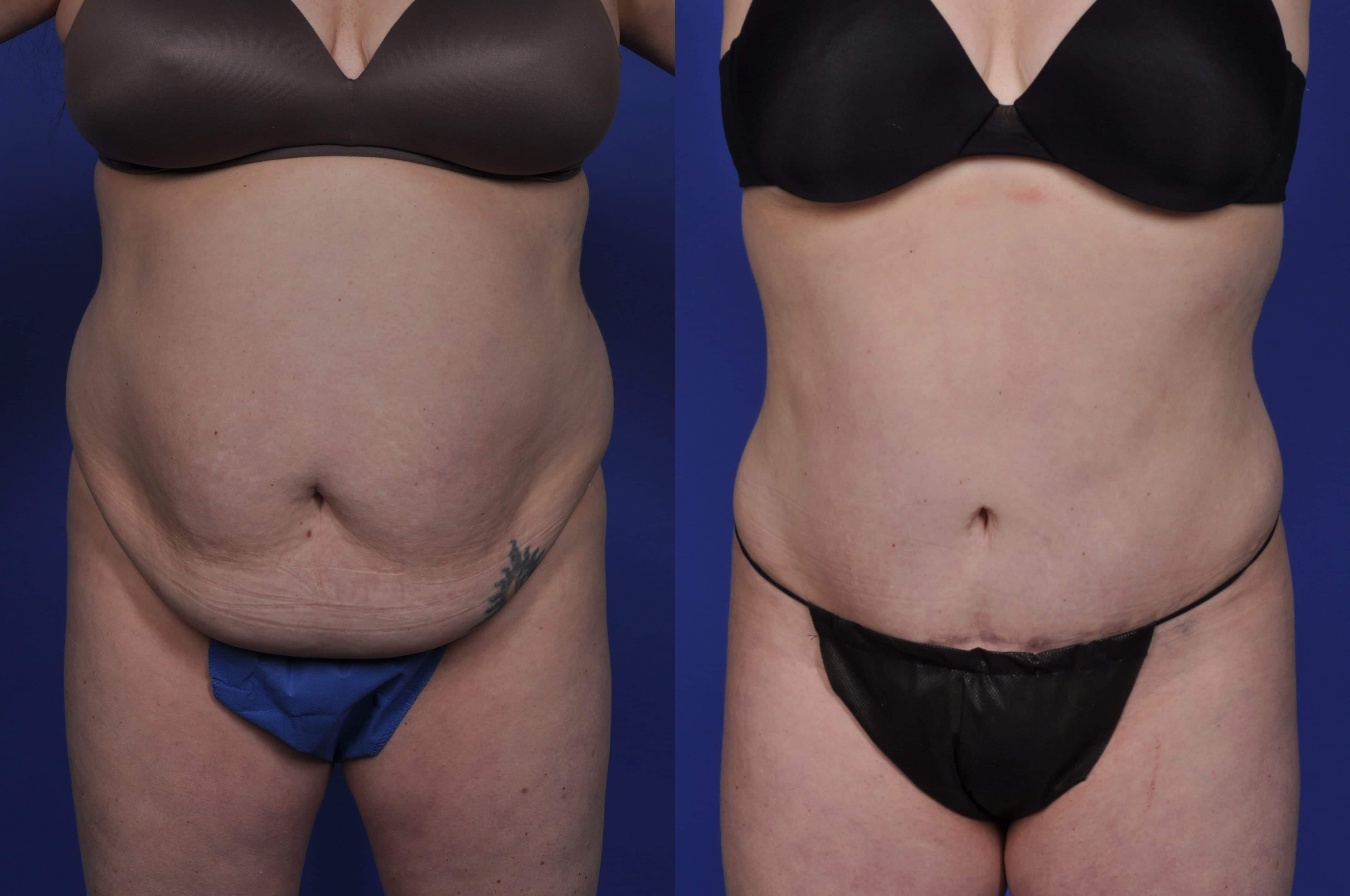 Plastic Surgery Tummy Tuck Before After photo - 1