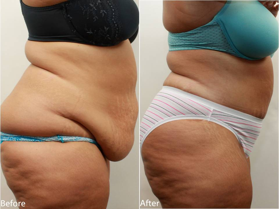 Plastic Surgery Tummy Tucks Before And After To Remove Apron photo - 1