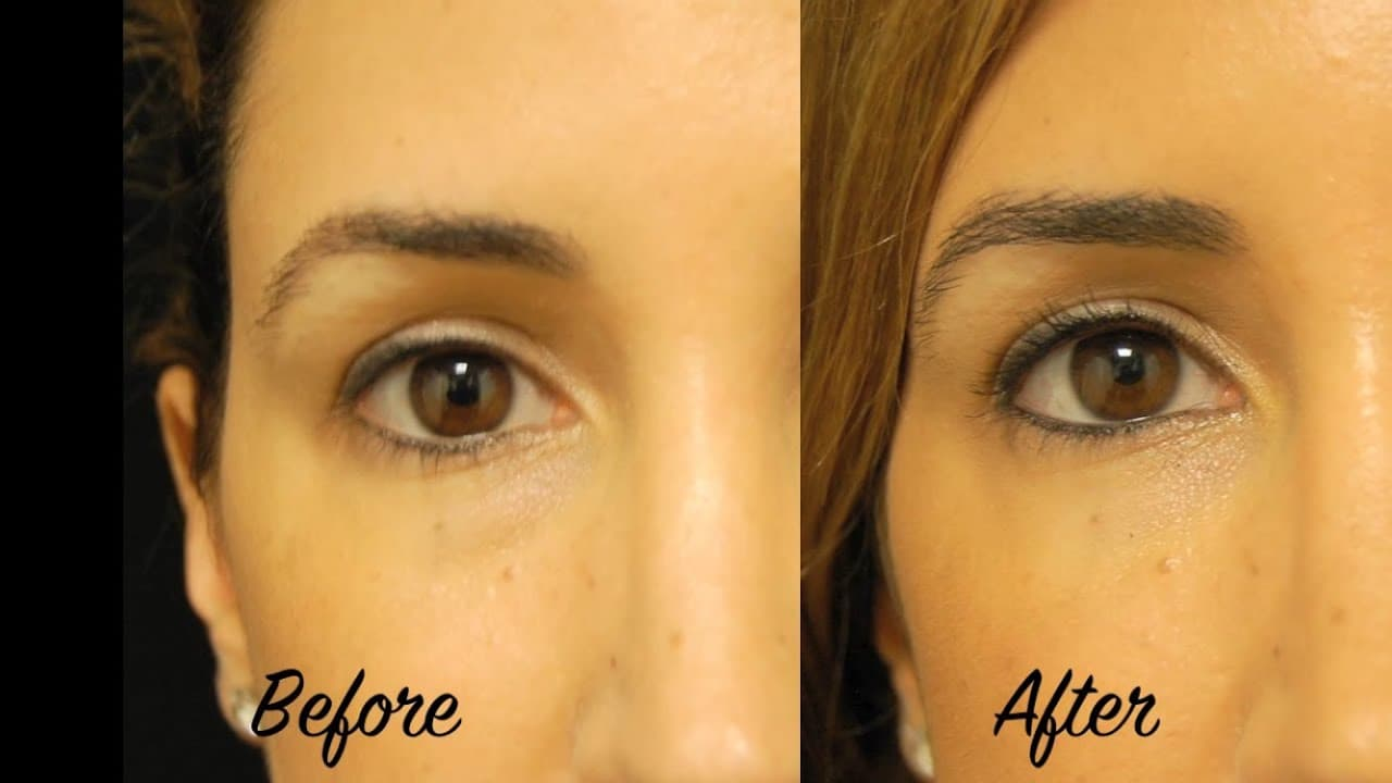 Plastic Surgery Under Eyes Before And After photo - 1