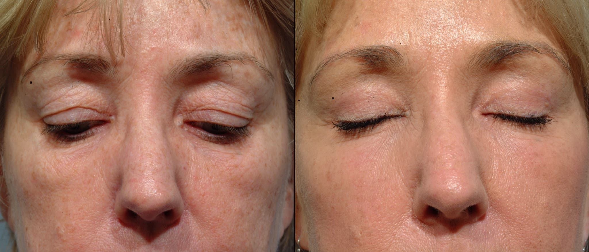 Plastic Surgery Upper Eyelid Before After photo - 1