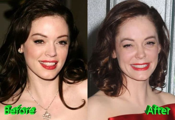 Plastic Surgery Victims Before And After photo - 1