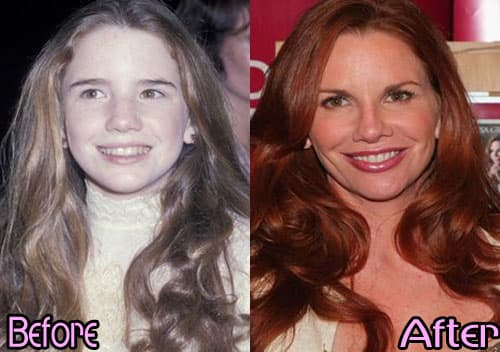 Plastic Surgery Websites Before And After photo - 1