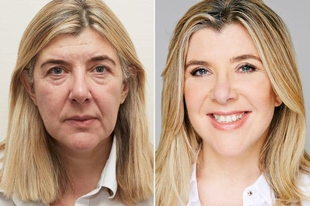 Plastic Surgery Whole Body Cost Before And After photo - 1