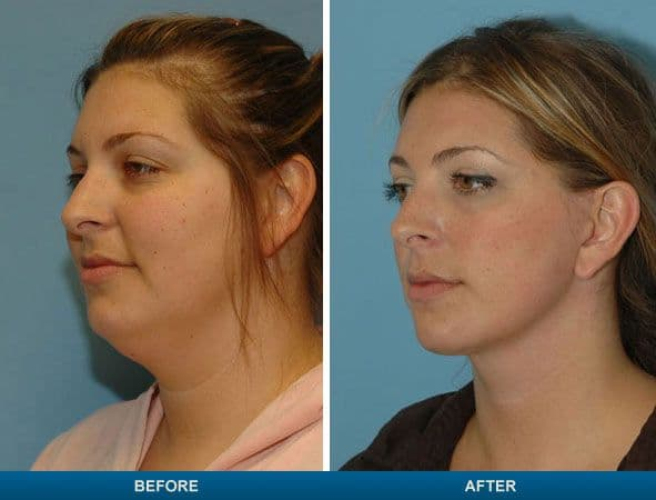 Plastic surgery on neck double Chin photo - 1