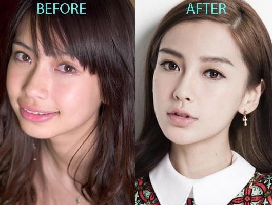 Pony Before Plastic Surgery photo - 1