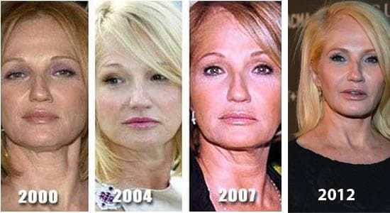 Portia Before And After Plastic Surgery photo - 1