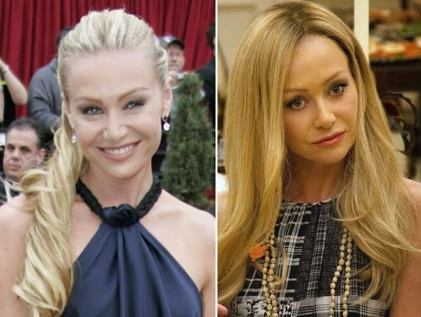 Portia De Rossi Before And After Plastic Surgery photo - 1