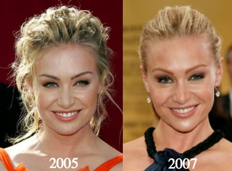 Portia De Rossi Plastic Surgery Before And After photo - 1