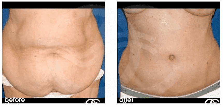 Post Bariatric Plastic Surgery Before After photo - 1