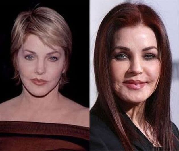 Priscilla Presley Before Plastic Surgery photo - 1